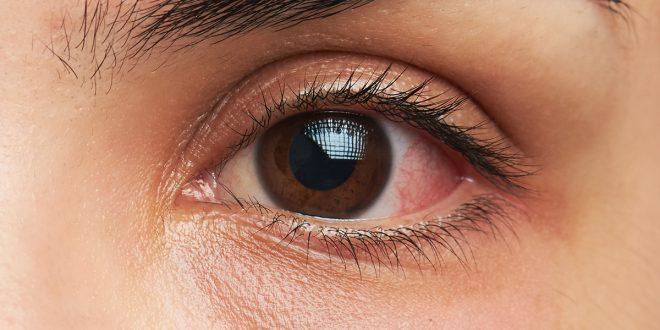 این چند علائم هشداردهنده در چشم را جدی بگیرید!