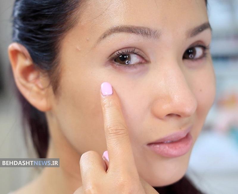 ورم چشم را با طب سنتی درمان کنید