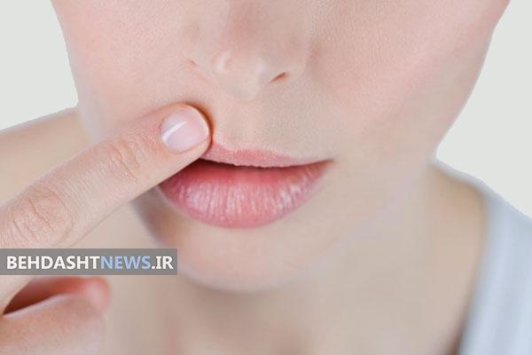اثربخش ترین روش سنتی درمان سریع تبخال
