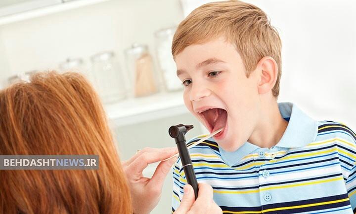 التهاب لوزه ها ( عفونت لوزه سوم) علل، علائم، انواع