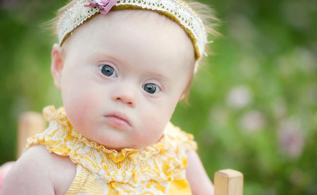 افزایش خطر ابتلای نوزاد به سندرم داون با افزایش سن مادر