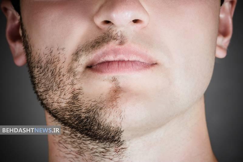 کم پشت بودن ریش از علت تا درمان