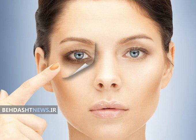هشت روش طلایی کاهش تیرگی زیر چشم