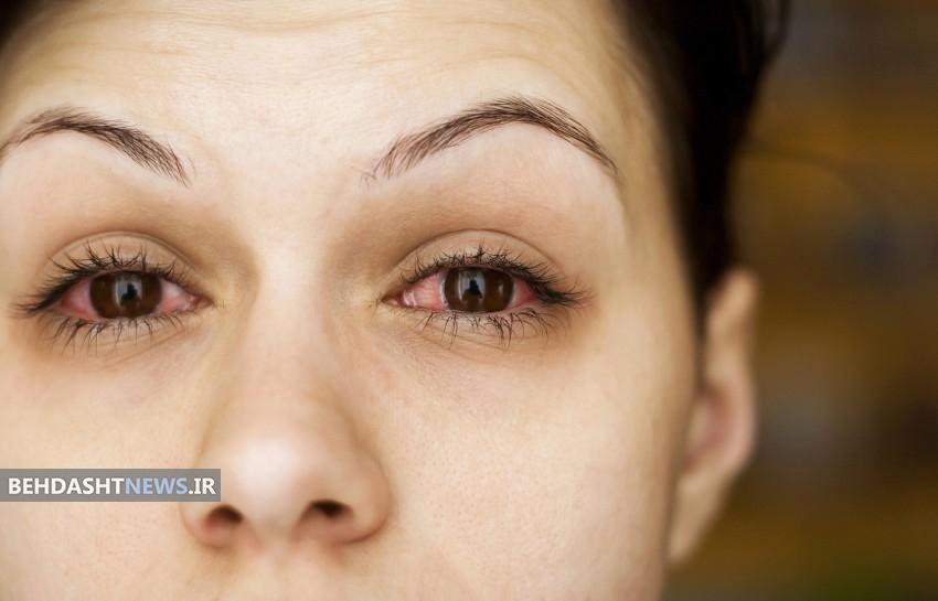 7 علت رایج لکه های خونی داخل چشم