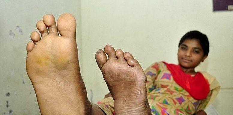 حذف انگشتان اضافی از پای دختر ۸ انگشتی هندی +تصاویر