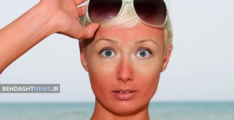 راه حل درمان آفتاب سوختگی شدید