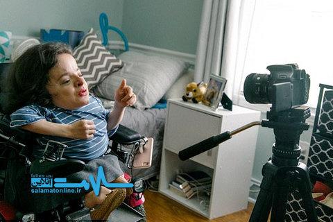 ستاره زیبایی؛ نوجوانی با یک بیماری نادر استخوانی +تصاویر