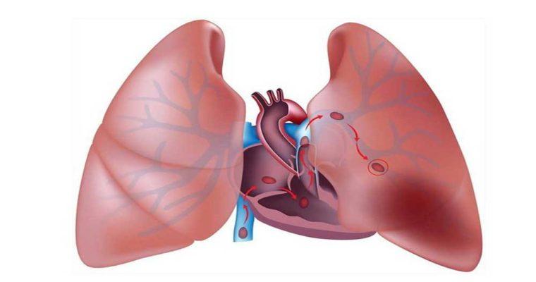 5 نکته برای حفظ سلامت ریه ها