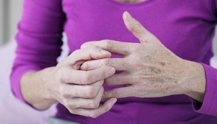 خبری خوش برای بیماران روماتیسم