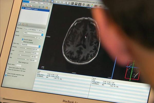 سن مغز شما ، زمان مرگ را پیش بینی می کند