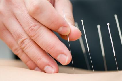 چگونگی کاهش درد با استفاده از طب سوزنی
