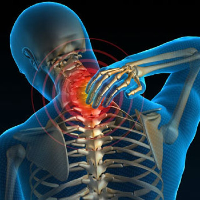 هر آنچه در مورد فتق دیسک گردن باید بدانید