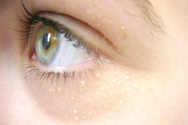 دانه های سفید اطراف چشم را چگونه درمان کنیم؟