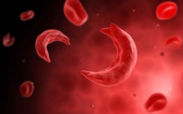داروی جدید برای درمان بیماری سلولهای داسی