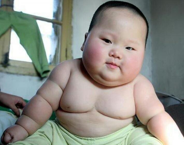 چاقی دوره کودکی منجر به این بیماری در نوجوانی است