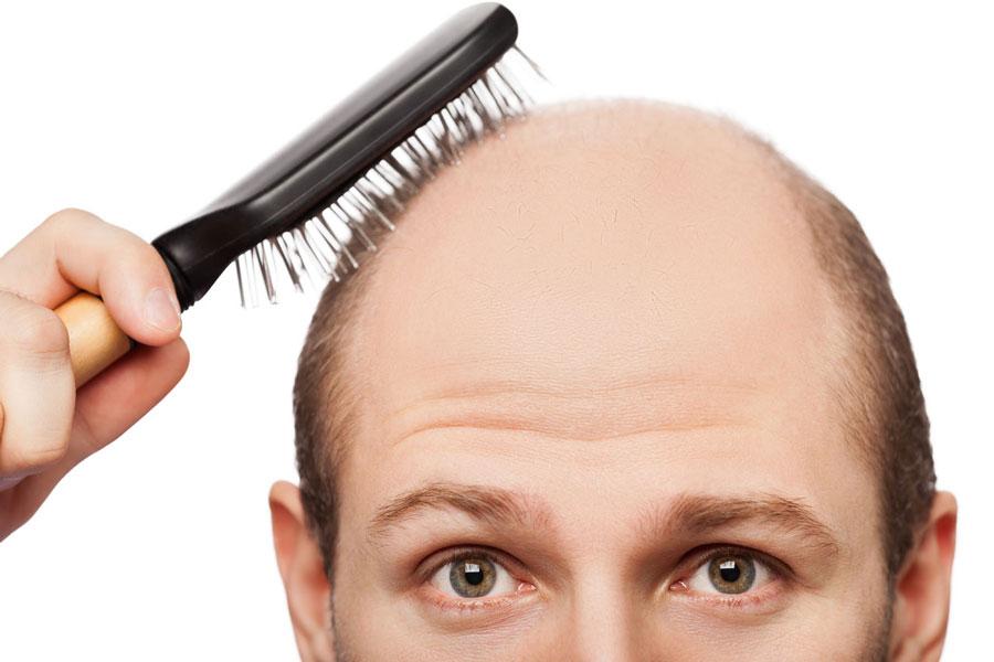 ریزش مو: علل و درمان گیاهی