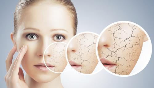 افزایش مشکلات پوستی با محصولات جوان کننده تقلبی/  تبلیغات اغراق آمیز ماهواره وشبکههای تلویزیونی