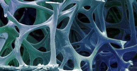 درمان ورم استخوان به روش جدید