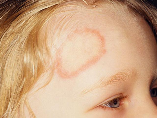 درمانی جدید برای مقابله با عفونت های قارچی روی پوست
