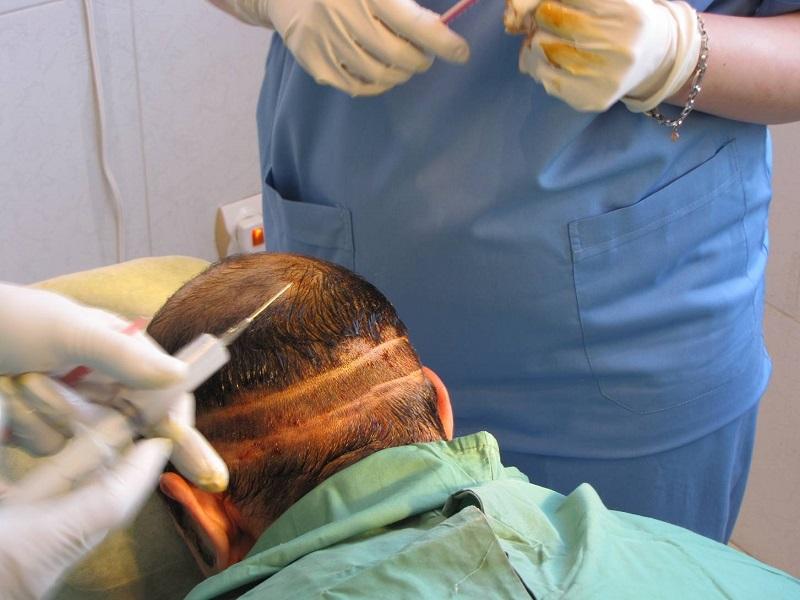 آسیبهای جبرانناپذیر کاشت مو در مراکز غیرمجاز