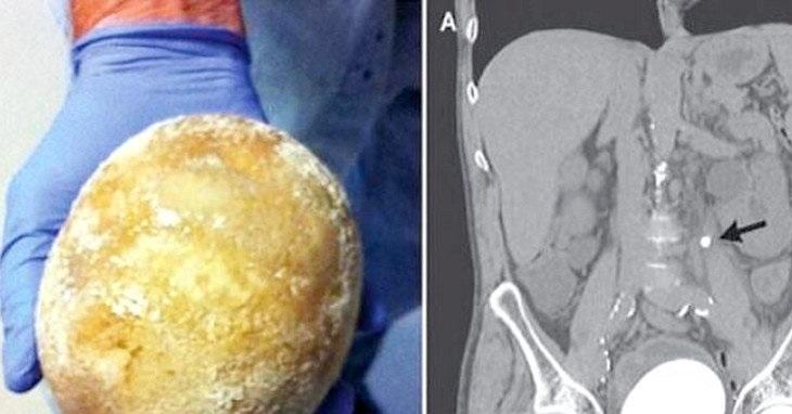 سنگ مثانهای به بزرگی تخم شترمرغ در بدن یک مرد +تصاویر