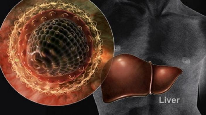 خطر انتقال هپاتیت C در محلهای غیرمجاز انجام حجامت