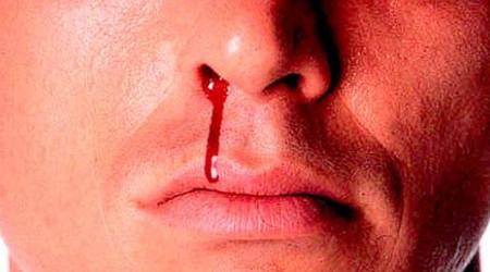۱۷ درمان خانگی شگفت انگیز برای خون دماغ