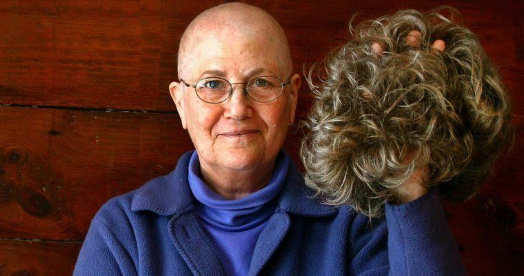 چرا «شیمی درمانی» باعث «ریزش مو» می شود؟ + عکس