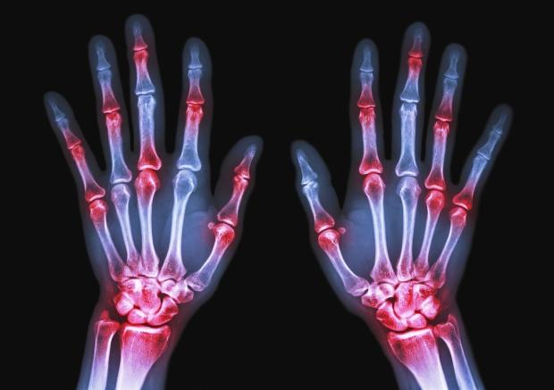 درمان عفونت استخوانی با یک سیستم جدید