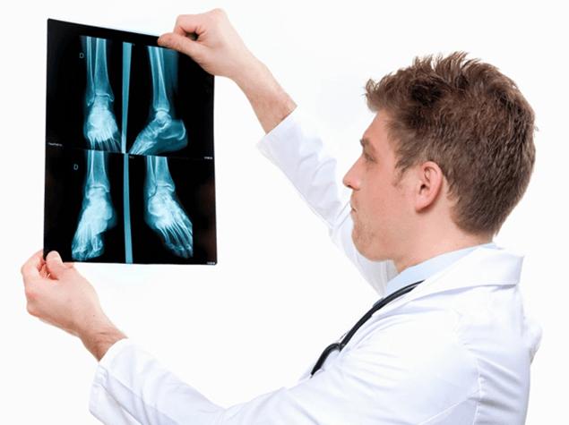 این نکات  را در خصوص بیماری های ارتوپدی و انواع آرتروز بدانید