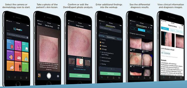 اپلیکیشن جدیدکه به تشخیص بیماریهای پوستی کمک میکند