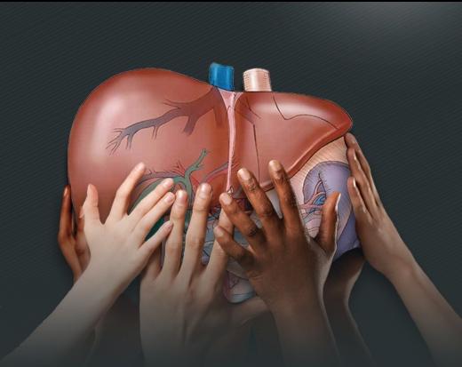 علائم و نشانههای سیروز کبدی را بشناسیم