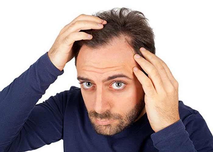 عوامل مهمی که باعث ریزش شدید مو می شود!
