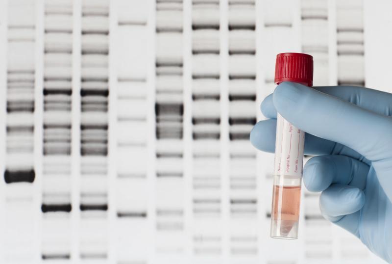 شناسایی به موقع این سرطان با آزمایش ژنتیک