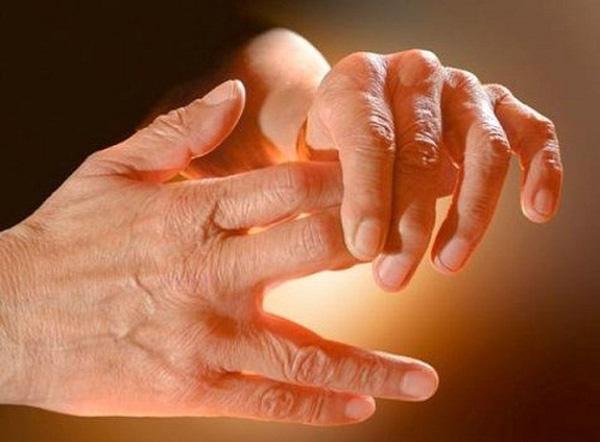 مهمترین دلایل گرفتگی عضلات دست!