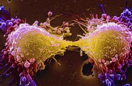 خودکشی سلول های سرطانی بدون آسیب به سلول های سالم