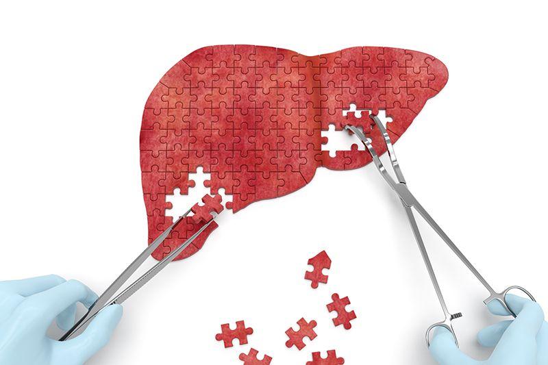 درمان اصلی کبد چرب