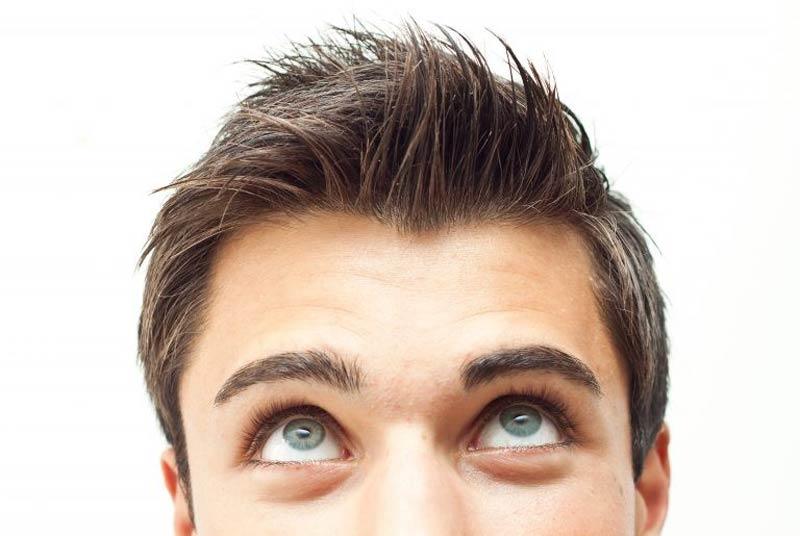 شایع ترین علت ریزش مو در زنان و مردان!