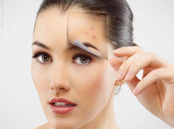 درمان های خانگی فوق العاده برای  جوش صورت