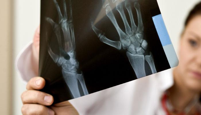 عواملی که در افزایش تراکم استخوان نقش مهمی دارند