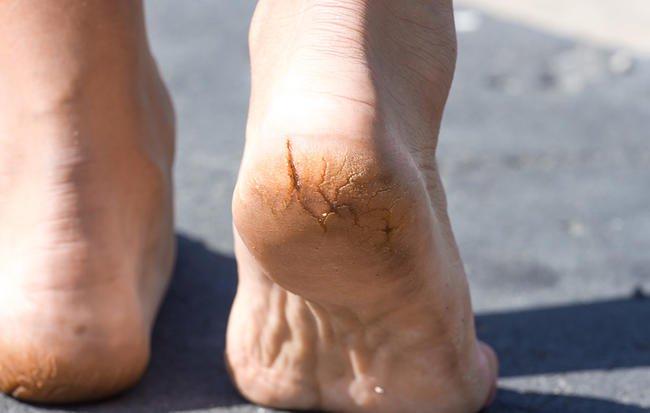 چرا پاهایتان همیشه خشک، پوسته پوسته و ترک خورده است؟