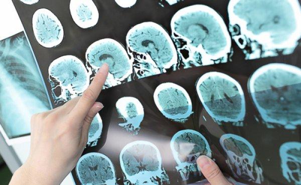 روشی جدید برای پیش بینی آلزایمر