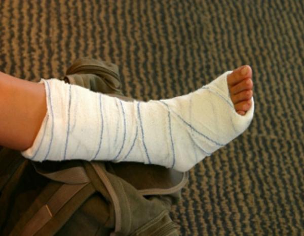 ترمیم استخوان آسیب دیده با یک روش جدید