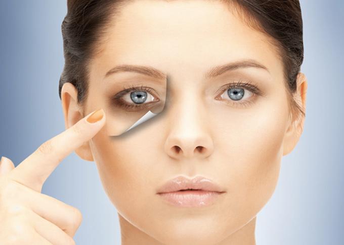 کبودی و گودی دور چشم را چگونه از بین ببریم؟