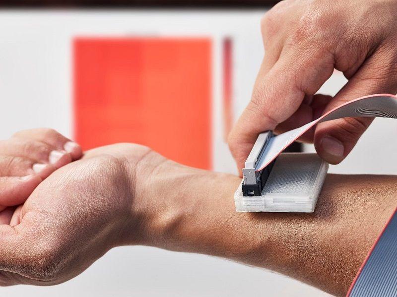 یک دستگاه ساده وارزان برای تشخیص سرطان پوست
