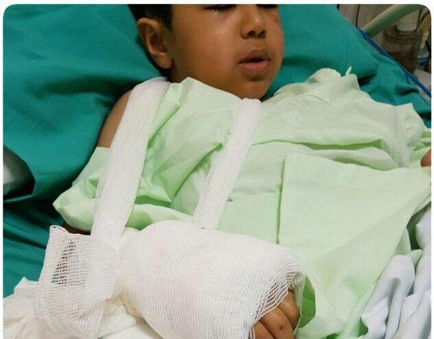 پیوند دست قطع شده کودک زلزله زده+عکس