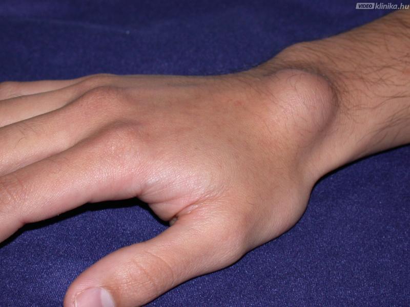تومورهای استخوانی در چه افرادی بیشتر دیده می شود؟