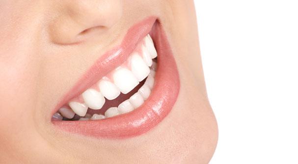 بلیچینگ یا سفید کردن دندانها