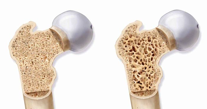 راه های پیشگیری از پوکی استخوان را بشناسید