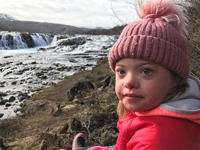 ریشه کن شدن سندروم داون در ایسلند برای همیشه
